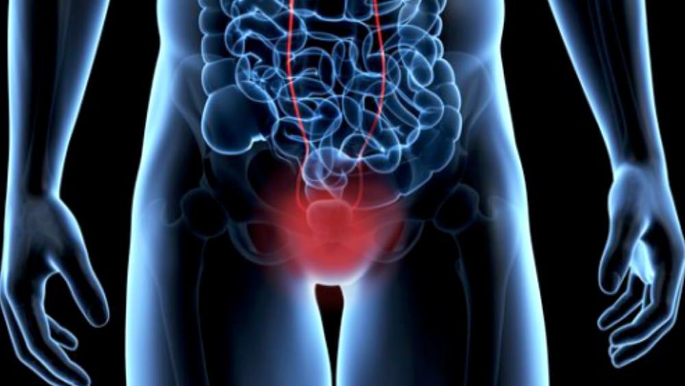 carcinoma della prostata centri di eccellenza